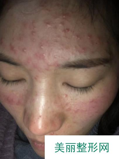 像素激光去痘坑效果真不是吹的,【图片】皮肤终于变得干净了一些!