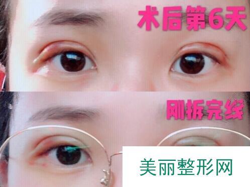 松原齐飞整形谁做双眼皮做得好?专家+案例分享!