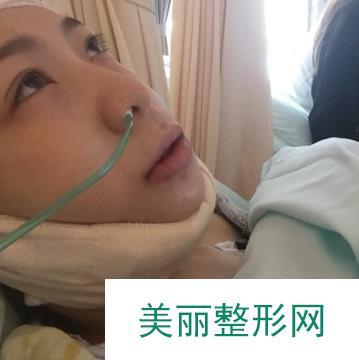 改脸型手术恢复过程图1-12天的效果,大宽脸拜拜啦!
