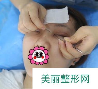 全切去皮去脂双眼皮案例【图】,换一双眼睛变化这么大!