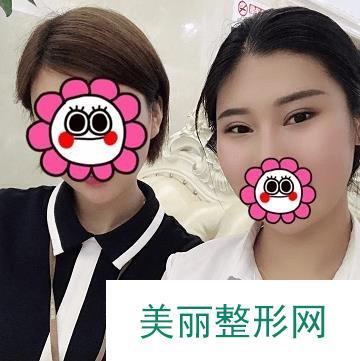 韩式翘睫术恢复照片图自然模样,不看后悔系列!