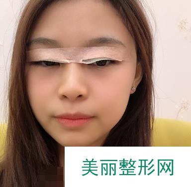 翘睫术双眼皮一个月恢复过程图,朋友说我变女神了!