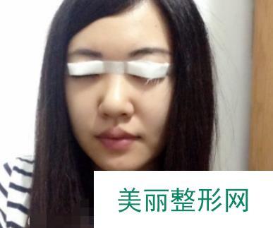 记录:全切6mm双眼皮恢复图,心事终于解决了!