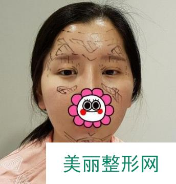 日记:双眼皮术后15天效果图分享,棒棒哒!