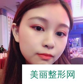 爱美分享:平行双眼皮案例图片,颜值和性格的双重影响!