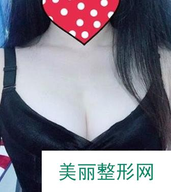 丰胸攻略|400cc假体隆胸案例,术后图片给各位姐妹分享!