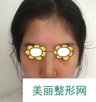 艳冠假体隆鼻效果案例图分享,没有透光的现象哟!