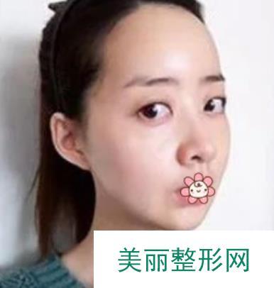 女生改脸型恢复过程效果图,献上近期的美照!