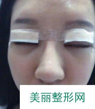 记录:park双眼皮恢复过程图,效果超级适合我
