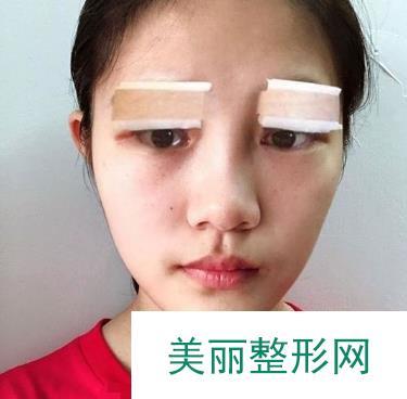 美杜莎双眼皮恢复图记录,看看这是成功的蜕变吗~
