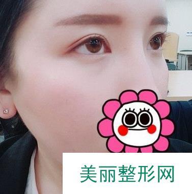 体验一把韩式微创双眼皮一周效果记录,超棒体验!