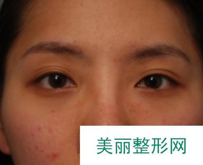 青医附院双眼皮案例本人来分享一波,术后效果很赞!