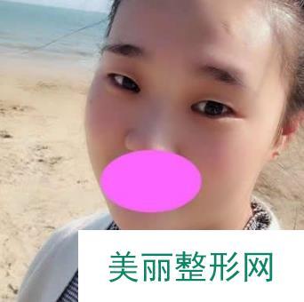 日记:上海九院张路双眼皮案例术后一个月分享