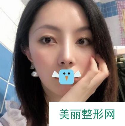 九江协和整形医院隆鼻案例一星期效果图