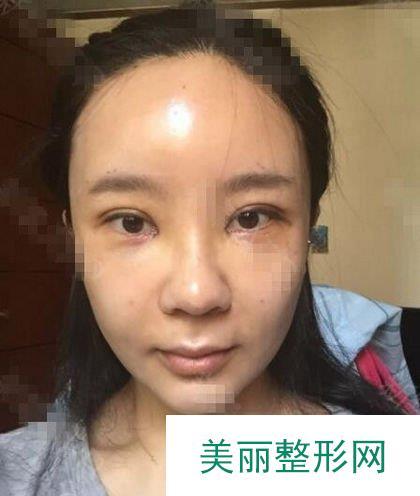 北京生物焊接双眼皮,真的做到了睁眼有神闭眼无痕啊