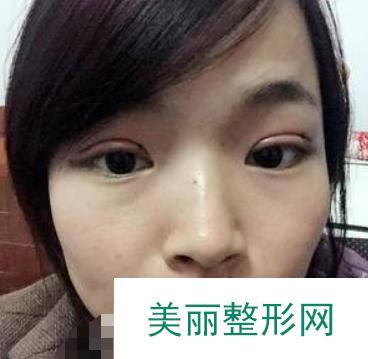 做了一个漂亮的双眼皮,提升的除了颜值还有自信