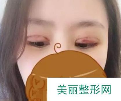 【记录】从内双成为漂亮的双眼皮的魅力转变,双眼皮超好看