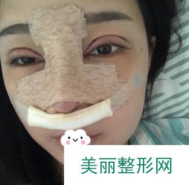 同时做了隆鼻加双眼皮,颜值提升了岂止一点点
