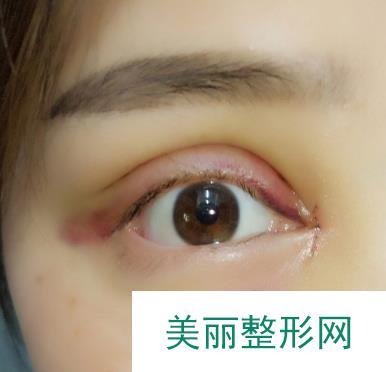 自从做了眼部修复的自己简直美翻了,可好看了