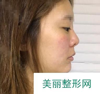 广州曙光双眼皮做的超级自然一点都不浮夸,眼睛超有神