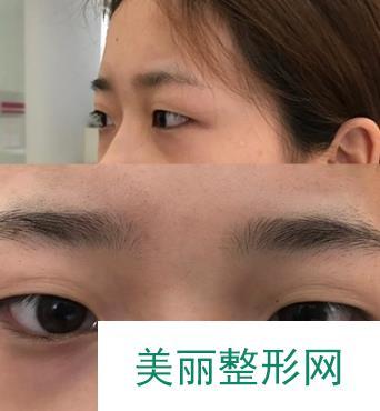 【日志】有了双眼皮以后再也不用贴双眼皮贴了,素颜也很好看