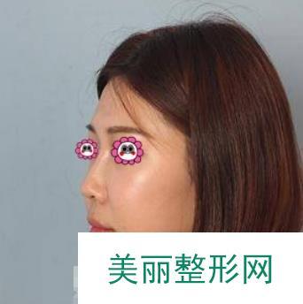 做完鼻综合手术以后,自己也有一个精致小巧还挺拔的美鼻子啦