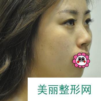 隆鼻手术用了2个多月就收获了魅力翘鼻,有了美鼻以后好运也随着而来