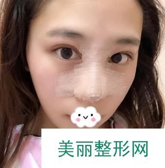 鼻综合阔以完美改善所有的鼻子缺陷,打造完美精致美鼻