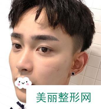 刘叔阳双眼皮案例分享,含图