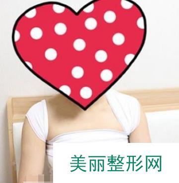 广州军美整形医院王世虎自体脂肪隆胸做的手感很真实,胸型敲好看