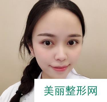 广州广美整形医院割双眼皮形状刚刚好,眼睛很有魅力喔