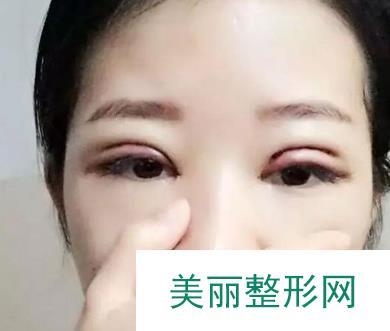驻马店缔莱美双眼皮一个月就恢复的很好了,我超喜欢我的双眼皮