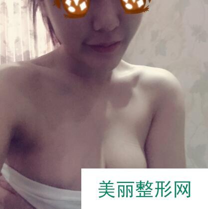 韩式假体隆胸效果怎么样?小姐姐真人案例见证效果