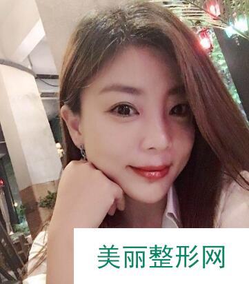 刘伟忠_个人主页_*********瘦脸案例