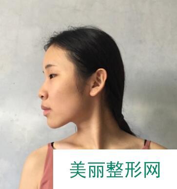 在北京韩式隆鼻两个月,收获炒鸡挺翘的小鼻子