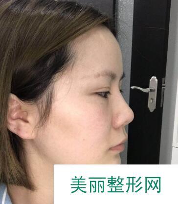 鼻翼缩小好不好?蒜头鼻蜕变为精致小翘鼻你说呢