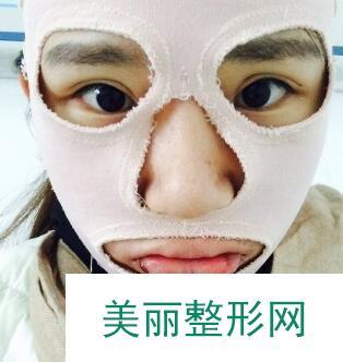 武汉伽美整形医院好吗?做了改脸型从路人甲变成可耐小仙女