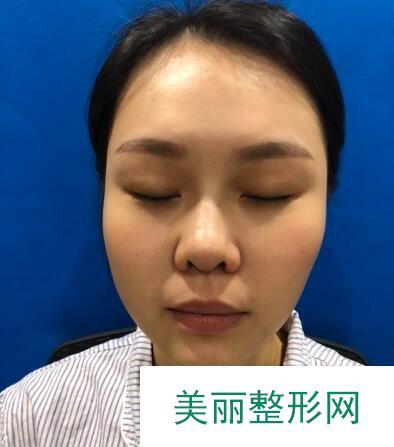 鼻翼太宽做了手术改变,蒜头鼻少女有了精巧美鼻更美了