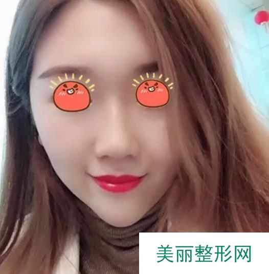 桂林181医院激光祛斑一次比一次效果好,肌肤变得光洁白嫩