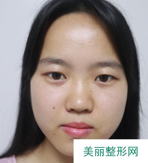 常熟瑞丽医院割了双眼皮没有疤痕恢复的很自然敲开心