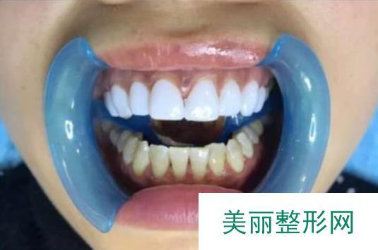 天津维美医院做了烤瓷牙笑起来一口大白牙好好看