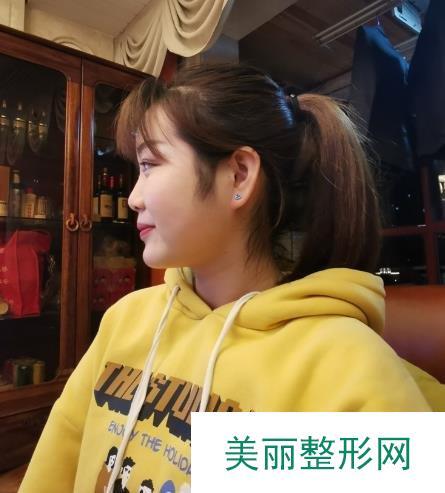 【记录】郑州梨花雨整形医院做了玻尿酸面部填充+隆鼻颜值高多了