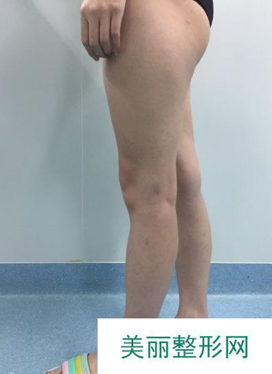 找王志军做了腿部吸脂,这个夏天我也可以秀出纤细美腿辣