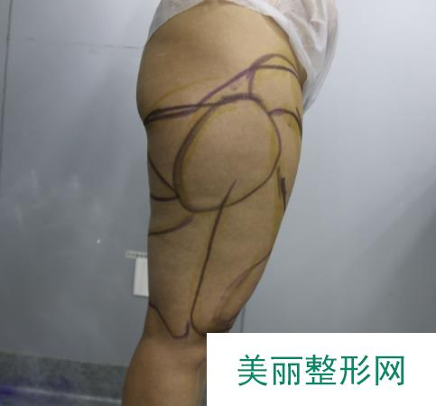 百达利整形医院做了大腿吸脂,这漫画腿是我想要的效果