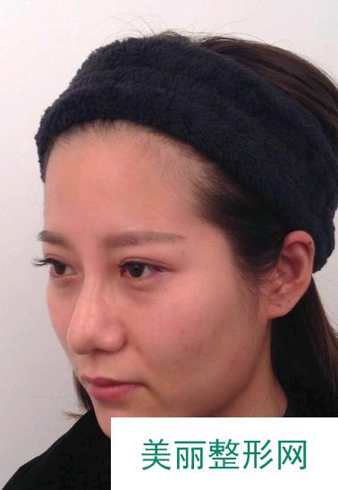 田永成专家团帮我去了眼袋,眼睛精神了找回了18岁的赶脚