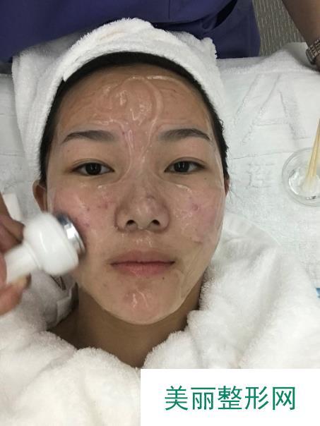 做了激光祛痤疮脸颊肌肤变得炒鸡光滑白皙效果不是一般的好