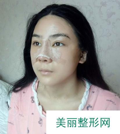 慕名找姜平医生做了隆鼻果然很不错手感真实很立体