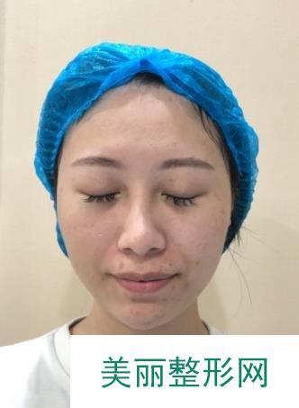 林秋蓉给我做了光子嫩肤后不用化妆皮肤状态也很好