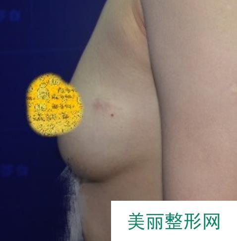 小胸妹的逆袭:隆胸后怎么穿都炒鸡性感拍照更好看