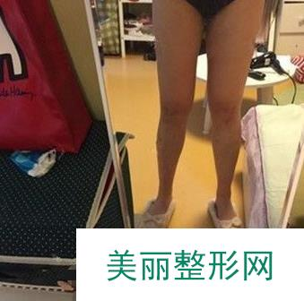 找广州军美王世虎吸脂后,大象腿变成漫画腿